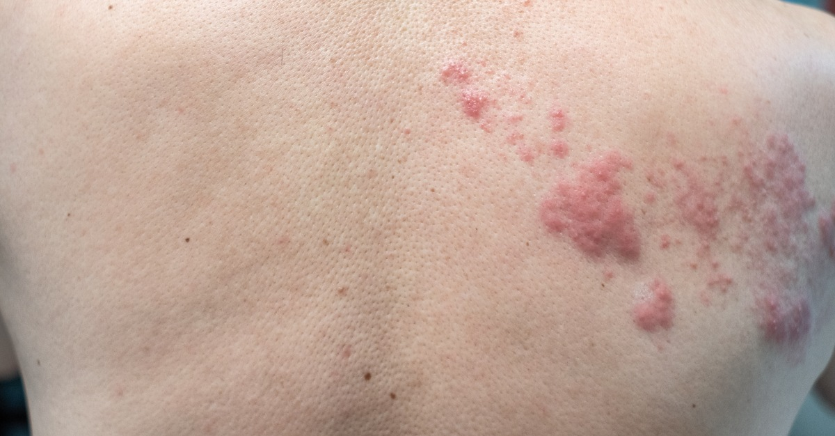 One long term symptom of shingles may include nerve damage.